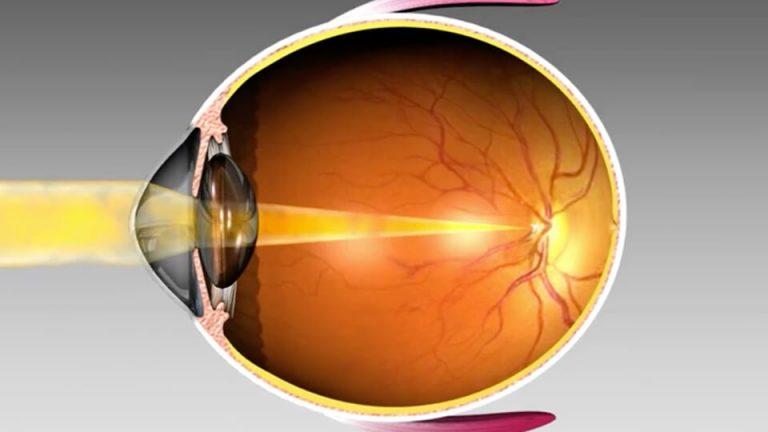 Northpoint Eye Care - Eye Anatomy - Myopia