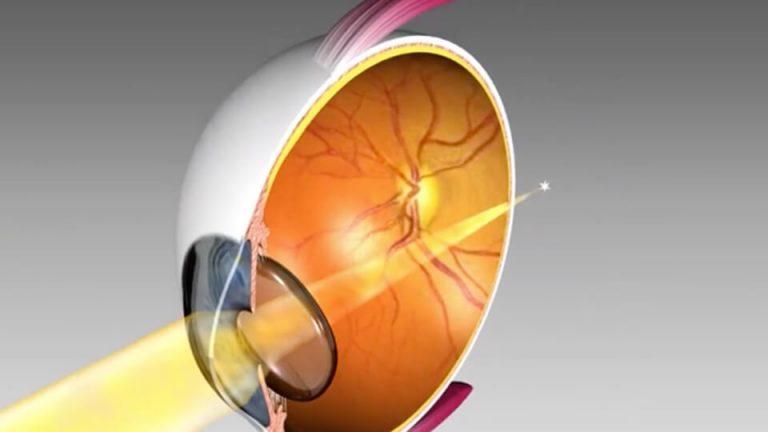 Northpoint Eye Care - Eye Anatomy - Hypermetropia