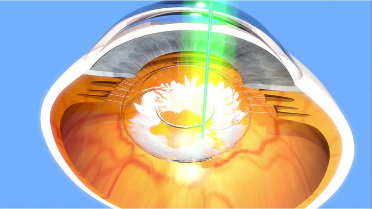 Northpoint eyecare - YAG Laser Capsulotomy