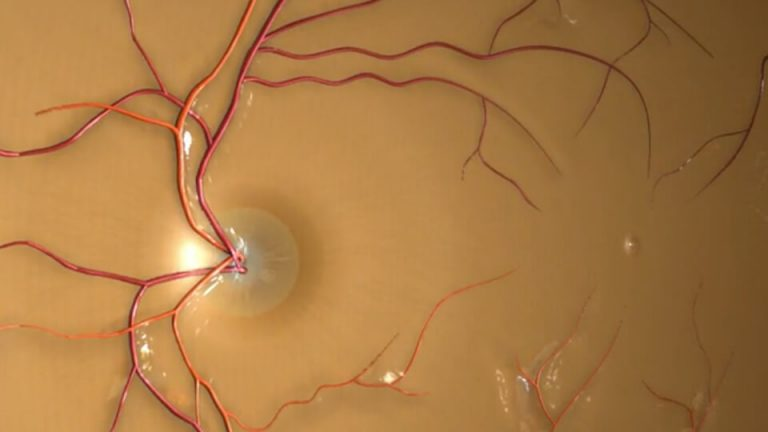 Northpoint eyecare - INTRAVITREAL INJECTION