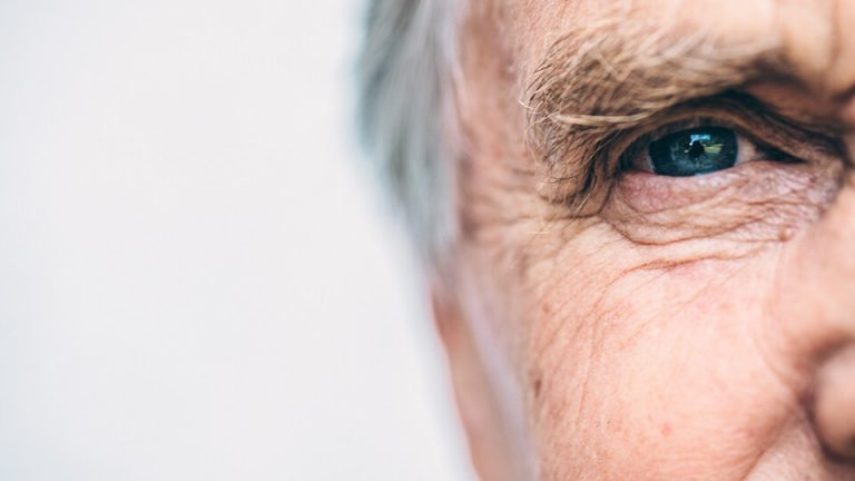 Northpoint eyecare - Eyelid malposition