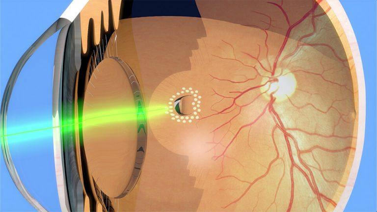 Northpoint eyecare - Argon Laser Retinopexy